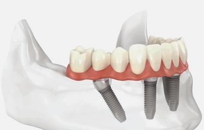 home-teeth-1