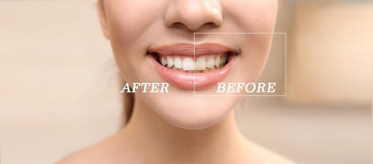 iSmile-teeth-whitening-queensland